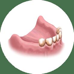 Имплантация мало зубов