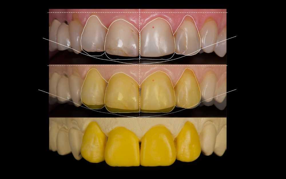 Протезирование зубов - примерка