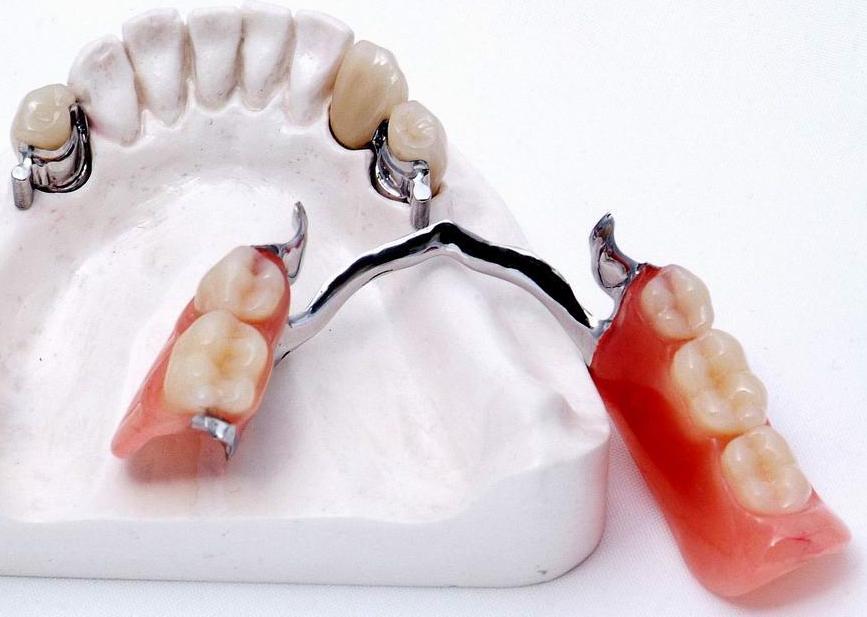 протезирование зубов бюгельный протез