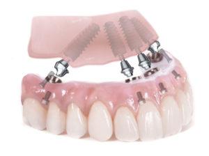 Протезирование зубов в Спб