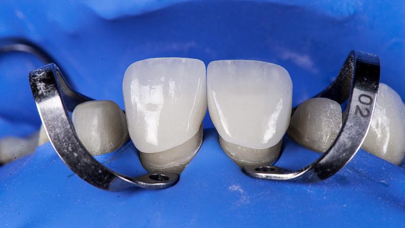 Фиксация коронок при протезировании зубов
