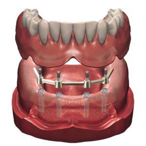протезирование зубов 4 импланта