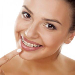 Установка вестибулярных брекетов на зубы
