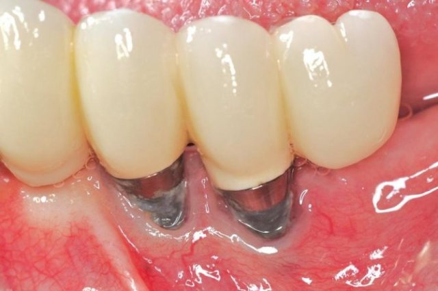 3 причина отторжения зубных имплантов