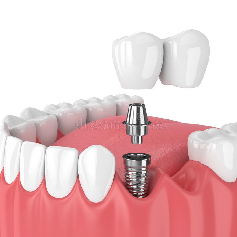 4 причина отторжения зубных имплантов