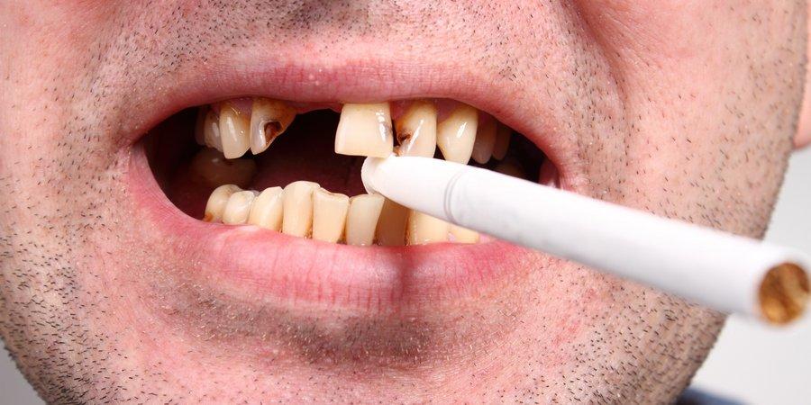 6 причина отторжения зубных имплантов