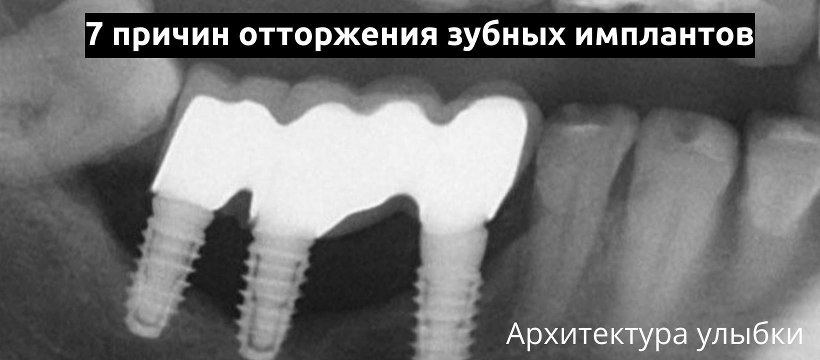 Семь причин оторжения зубных имплантов