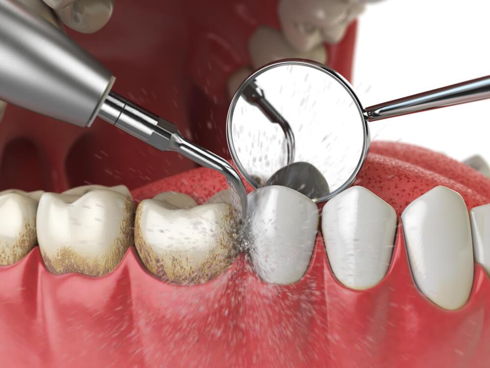7 причина отторжения зубных имплантов