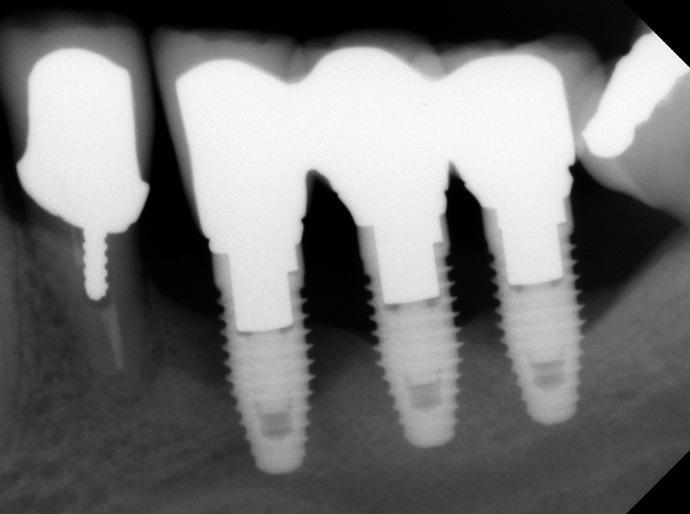 2 причина отторжения зубных имплантов
